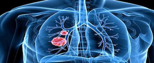 """防治肺癌 应从关注""""肺结节""""开始"""