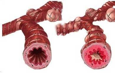 医生表示支气管炎危害大,应选择正规医院治疗